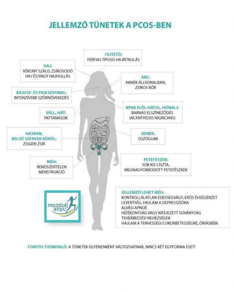 pcos tünetek