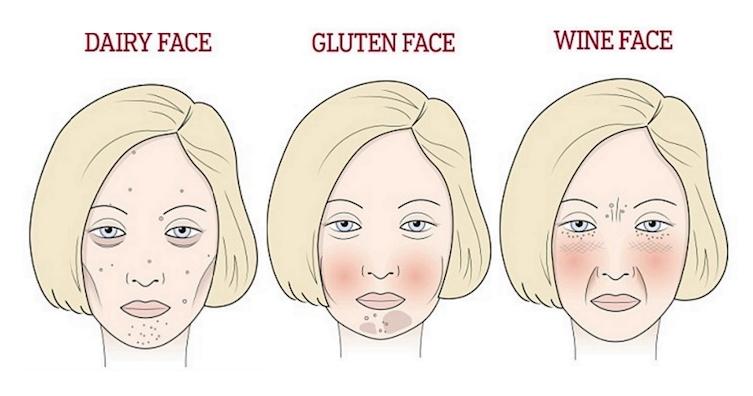Ételérzékenység megjelenése a bőrön